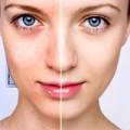 Myter om acne